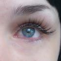 ожог глаза